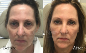 Restylane Before Amp After Photos Jane Olson Md