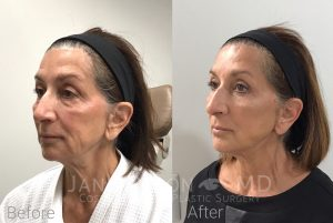 Silhouette Instalift Before & After Photos | Jane Olson, MD